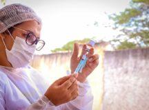 Vacinação contra Covid-19 é ampliada para pessoas acima de 40 anos para o Grupo 2 de comorbidades